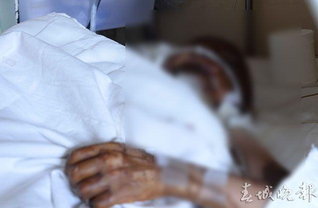 昆明6岁男童被浇硝酸